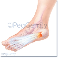 325 Plantar Fasciitis Pathology