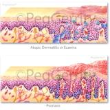 Skin-Eczema-and-Psoriasis-042-and-292