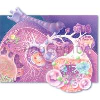 209 Aspergillus - Fungus in Lungs