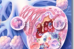 Asthma-Image-09