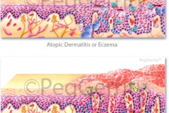 Skin-Eczema-and-Psoriasis-042-and-292