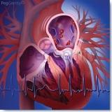 Atrial-Fibrillation-or-AFIB-Image-338