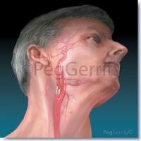 Clot-Carotid-Artery-Atherosclerosis-008