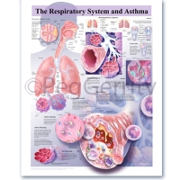 Asthma Poster 416