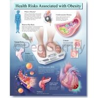 Obesity Poster 447