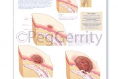 Bedsore Progression Poster 384V