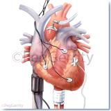 069 Cardiac Emergencies in Layers