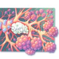 041V Pulmonary Nodules