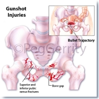 087ML-Gunshot-Wound-2