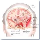 299-Head-Trauma-C