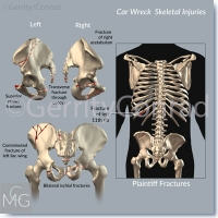 CMG-01-Car-Wreck-Fractures-B