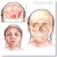 299-ML-Head-Trauma