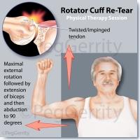344-Rotator-Cuff-Re-Tear-A