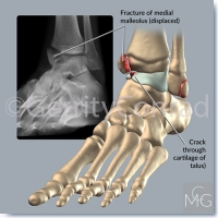 CMG-01-Car-Wreck-Ankle-A