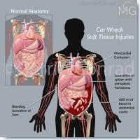 CMG 1-Car-Wreck-Soft-Tissue-Injuries-A