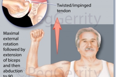 344-Rotator-Cuff-Re-Tear-A