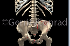 CMG-01-Car-Wreck-Fractures-A