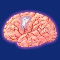 003-brain-stroke-embolism