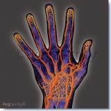 Arteriogram-of-Hand-and-Arm-297