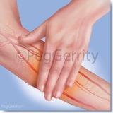 Diabetic-Arm-Rub-w-Arteries-Image-267
