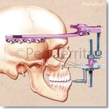 Maxillary-Distraction-Surgery-Image-002
