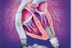 LVAD-Heartmate-II-Pump-image-353
