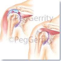 356-Rotator-cuff-tear-and-repair