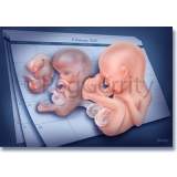 314V Fetal Age