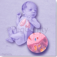 376-Newborn-Lungs-w-Optional-Disease