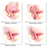 437, 438 Vaginal Vault Prolapse Repair