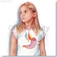 Gastroesophageal-Reflux-GERD-261