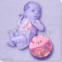 376-Newborn-Lungs-w-Optional-Disease